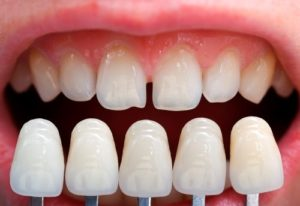 Facette dentaire : tout ce que vous devez absolument savoir